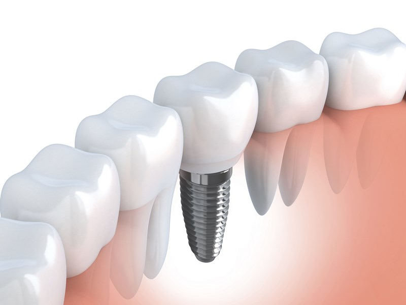 dental implant techniques