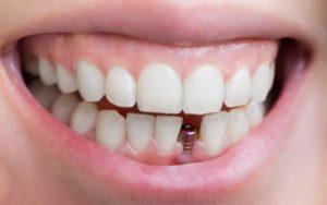 dental bridges surrey