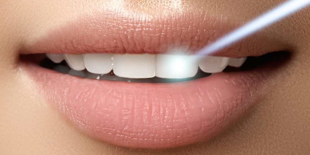 Laser Teeth Whitening Is a Way to Lighten Natural Tooth Color