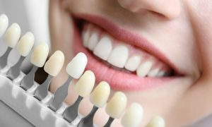 Improve Your Smile Using Cosmetic Dentistry