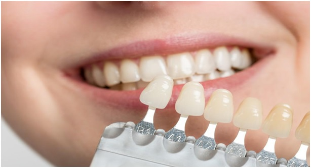 Cosmetic Dental Tips