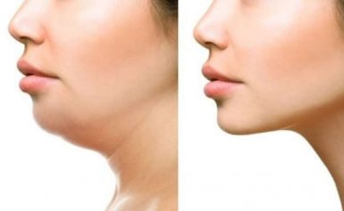 Causes Of Double Chin And How To Get Rid Of It