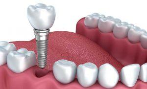 Benefits of Bridges and Dentists